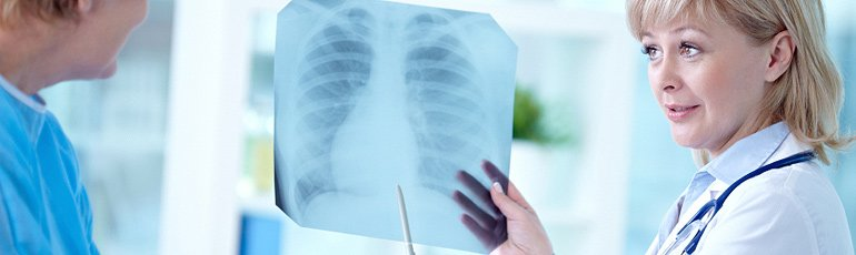 a doctor examining a lung xray for signs of mesothelioma